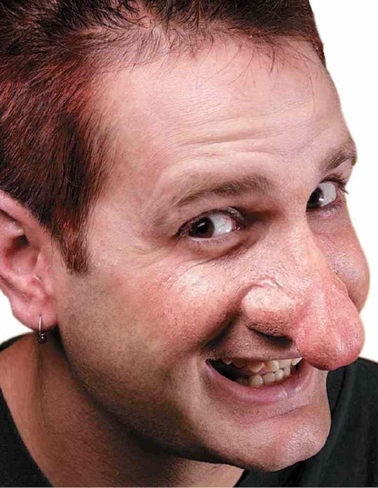 wide, bulbous prosthetic nose on subject photograph
