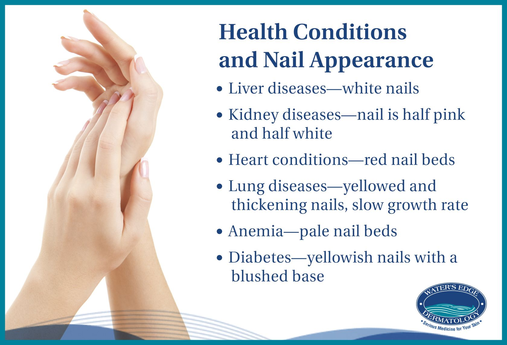 Your nails can reveal underlying health conditions, which