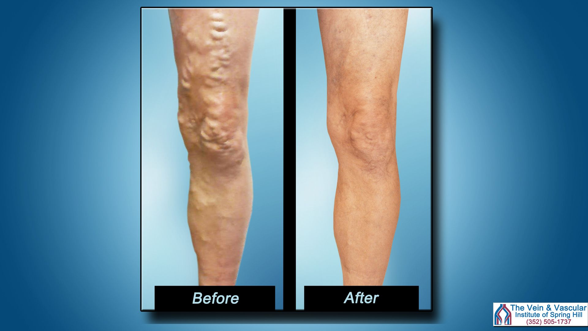 Pin By The Vein And Vascular Institute Of Spring Hill On Vein And Vascular Institute Of Spring Hill Updates Varicose Veins Treatment Varicose Vein Removal Varicose Veins