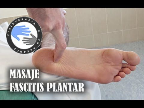 Masaje para fascitis plantar, como autotratar tu lesion