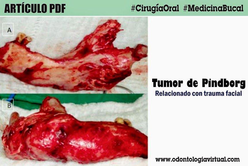 tumor-de-pindborg
