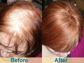 Crown Topper Hair Extensions Red installed by Shelly Wade at Beene And  Company Salon. http 0e69ea8012