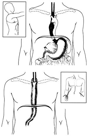 McKeown Esophagectomy Three field approach Surgery