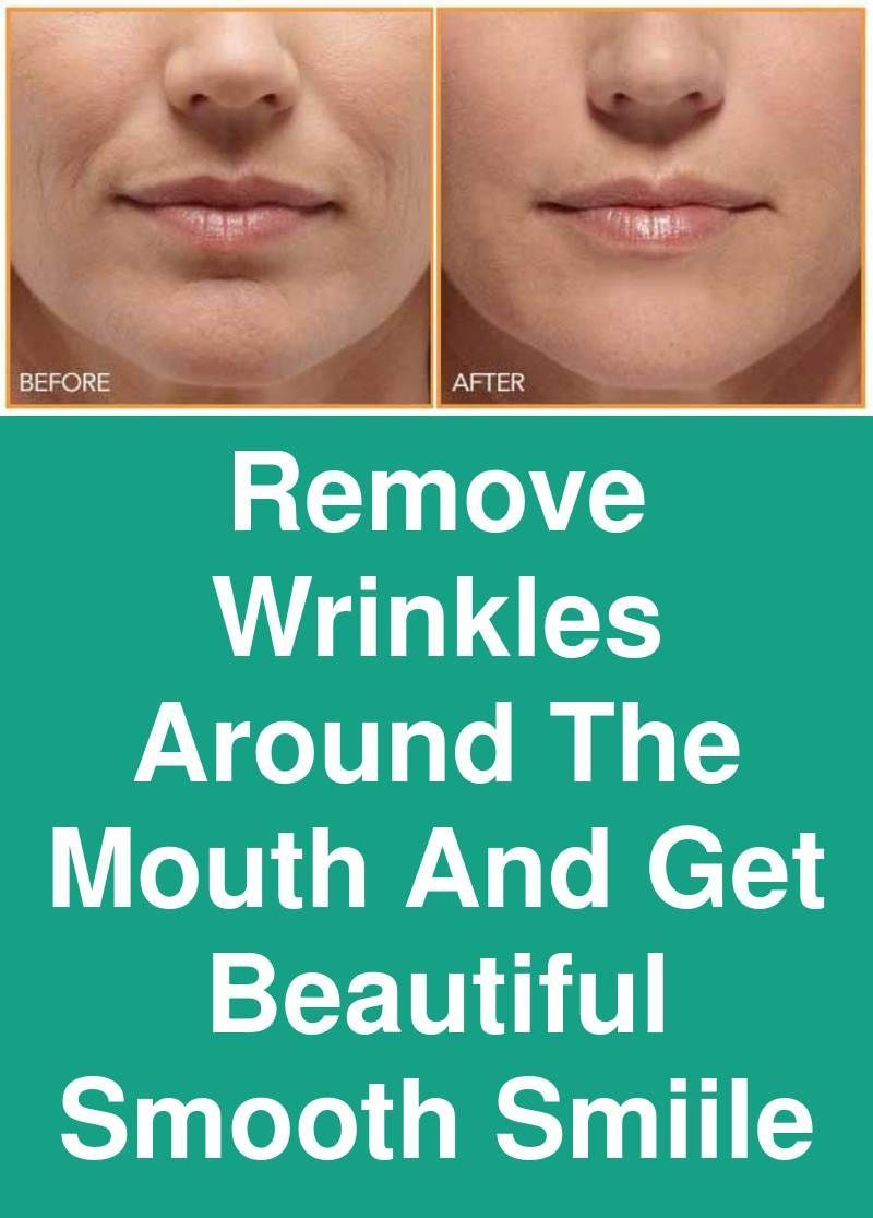 Remove Wrinkles Around The Mouth And Get Beautiful Smooth Smiile The Wrinkles Mouth Area Pop Up After Age Mouth Wrinkles Deep Wrinkle Treatment Wrinkle Remover