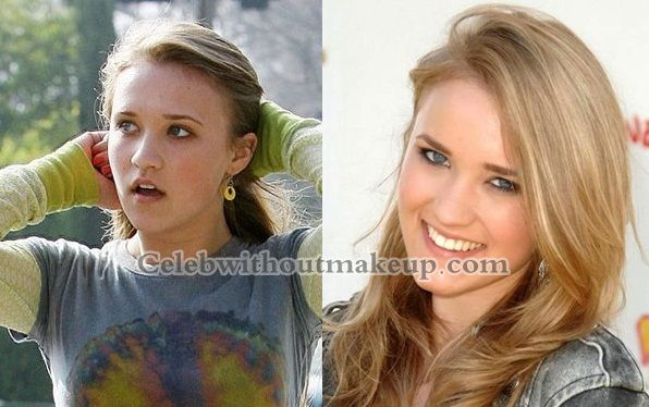 Emily Osment Before And After