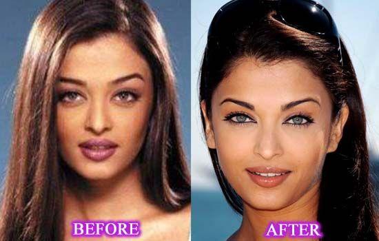 Aishwarya Rai Plastic Surgery | Celebrity Before After ...
