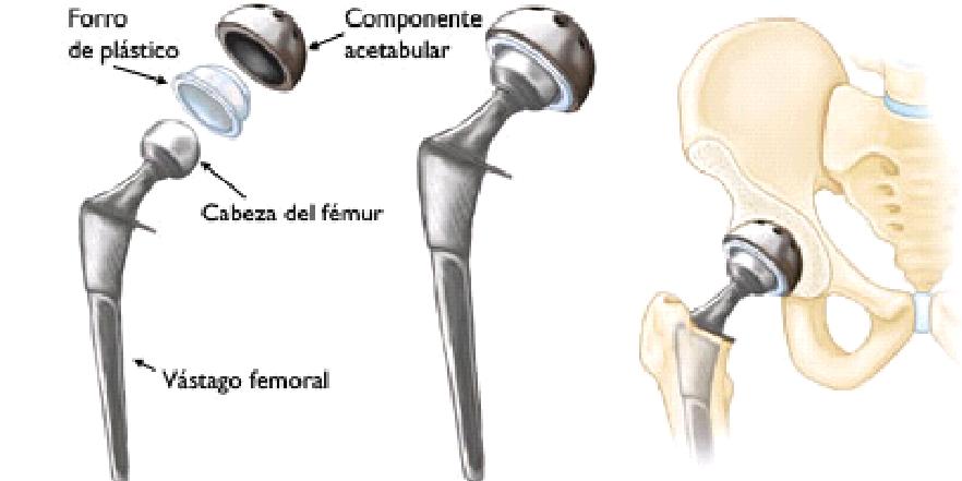 Actualidad De Implantes De Cadera 1 1 Introducción La Aplicación De Las Prótesis Femora Total Hip Replacement Hip Replacement Hip Replacement Surgery