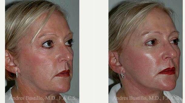surgery miami plastic Facial
