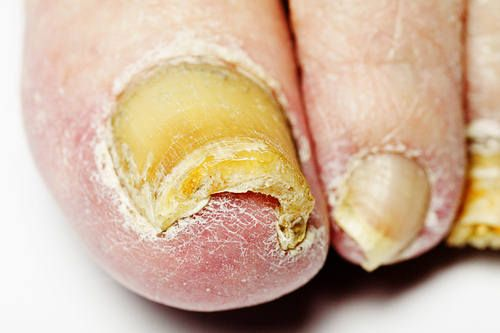 how to get rid of foot fungus at home