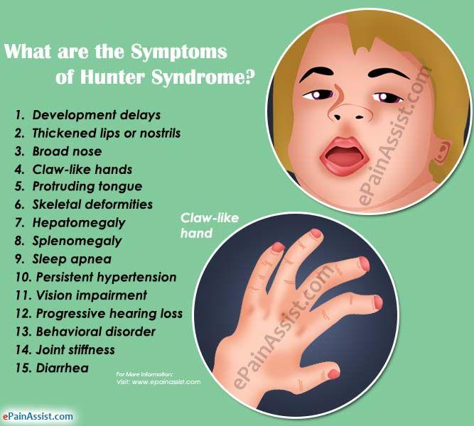 Hunter Syndrome: Treatment, Causes, Symptoms, Diagnosis ...