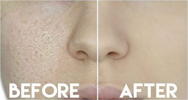 3 Days and all open pores will disappear from your skin forever!