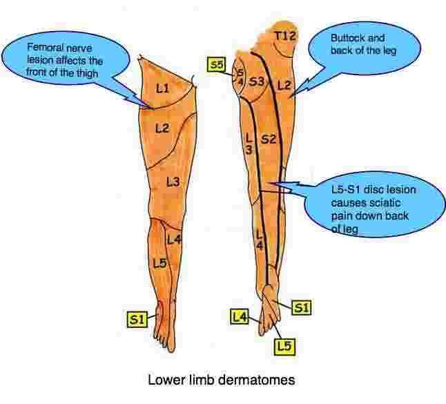 Sciatic Nerve Pain In Leg Femoral Nerve Roots L2 L3 L4 Front
