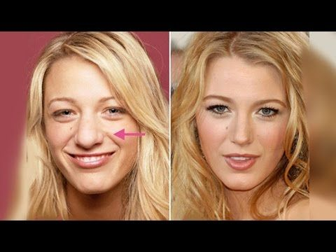 Weight Loss Before And After Nose 5 Best Celebrity Nose Jobs In