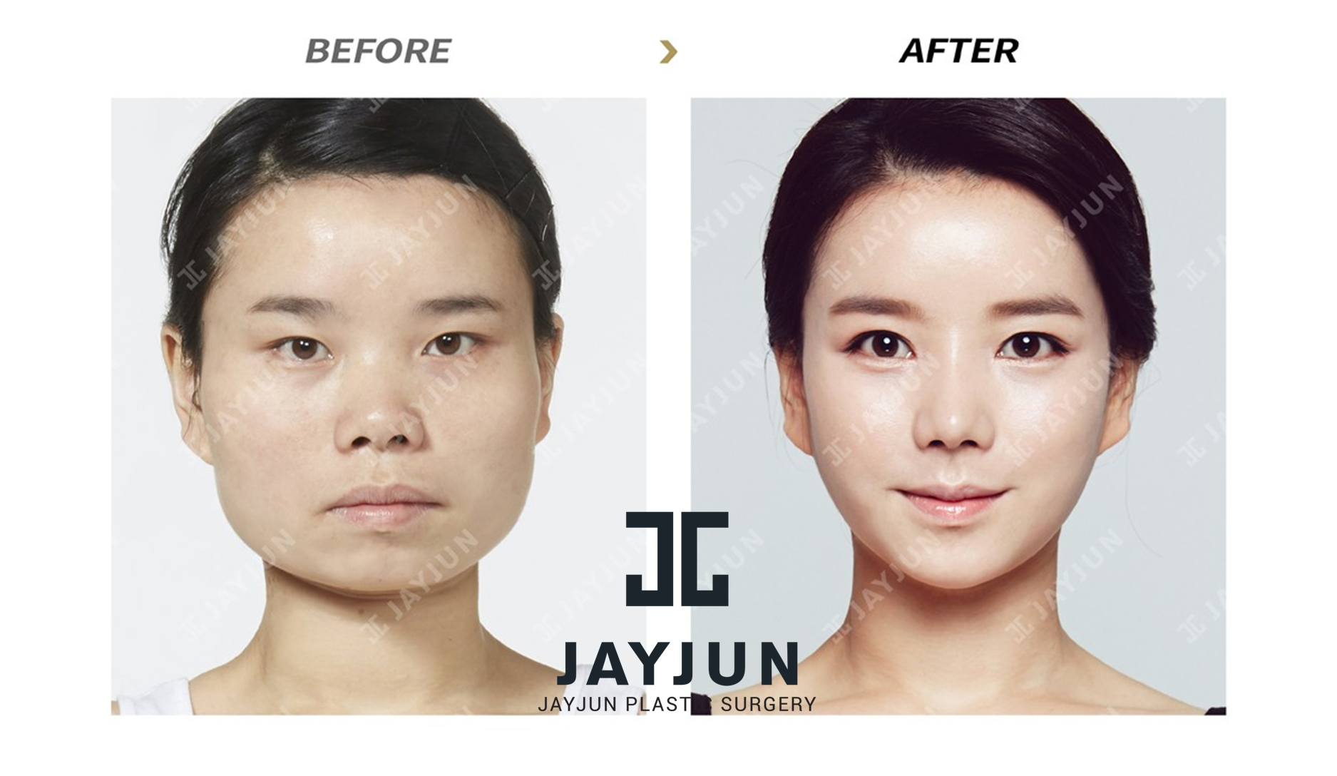 Korea Facial Contouring Surgery Before And After Korea Facial Bone  Contouring Surgery Korea Facial Bone Contouring