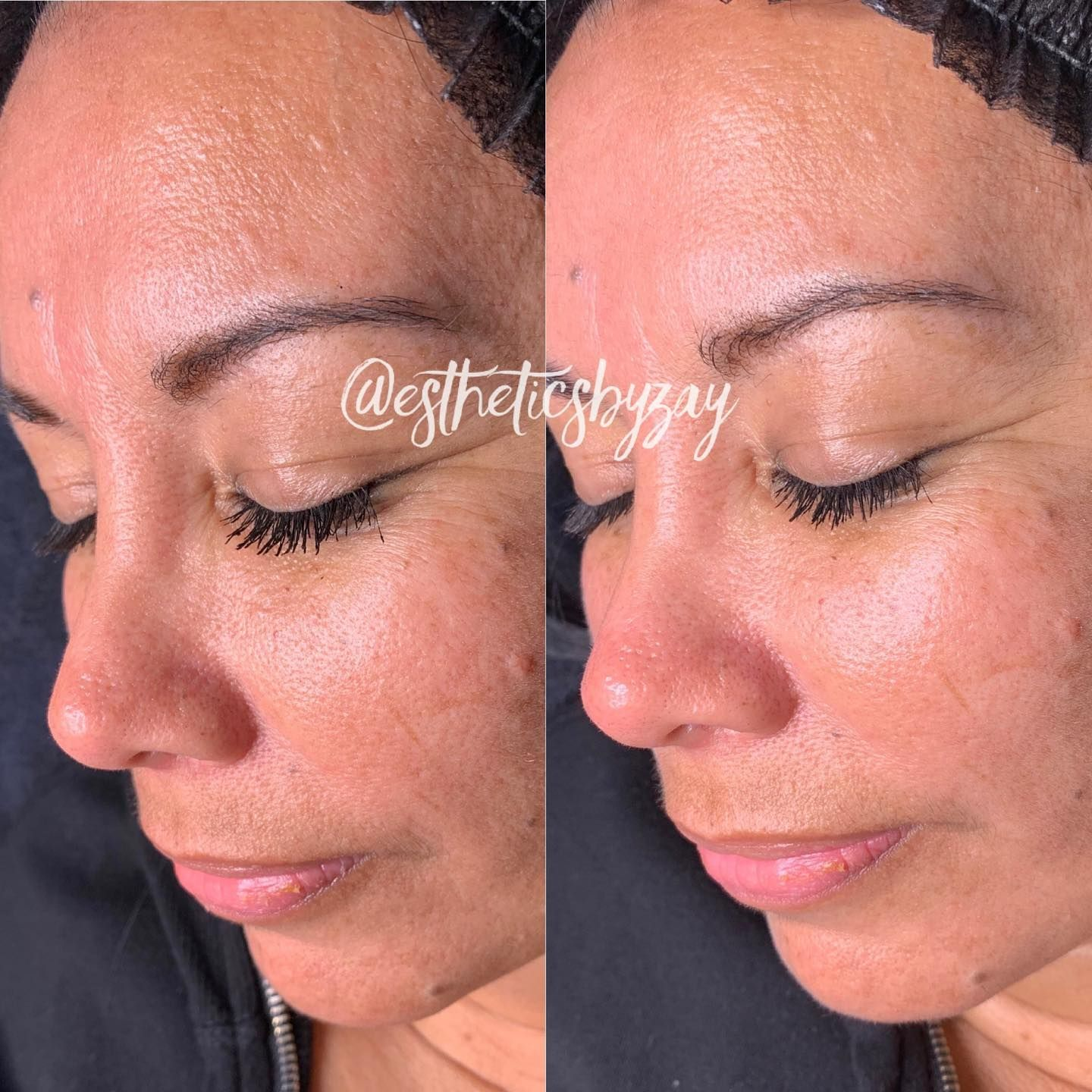 Before After Microdermabrasion Facial With A Custom Jelly Mask I Still Have Openings Available This Week In 2020 Microdermabrasion Facial Microdermabrasion Facial