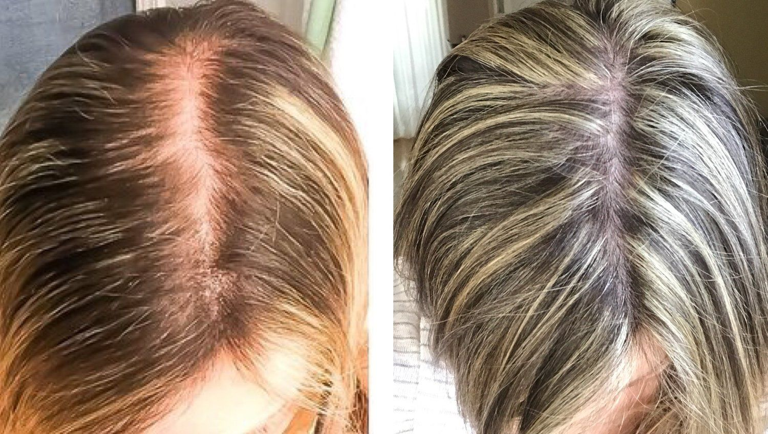 Women And Hair Loss: Causes, Solutions, and Support   Hair ...
