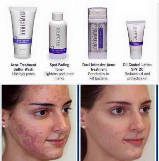 Embarrassing Acne For Teen Girl Is Resolved With Rodan