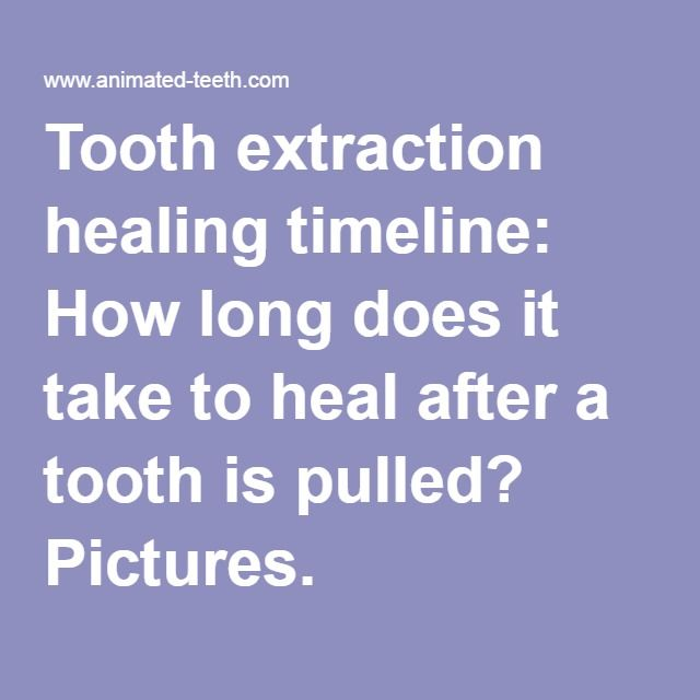 Tooth Extraction Healing Timeline How Long Does It Take To Heal After A Tooth Is Tooth Extraction Healing Wisdom Tooth Extraction Healing Wisdom Teeth Healing