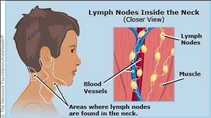Swollen Lymph Node Neck One Side