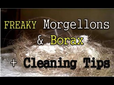 FREAKY!!! Morgellons Borax Experiment + Environment Cleaning Ideas