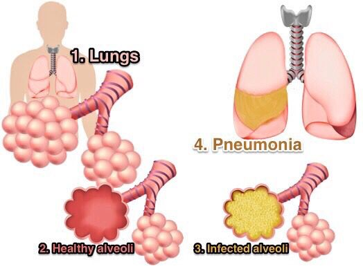 Image result for easy explanation of pneumonia