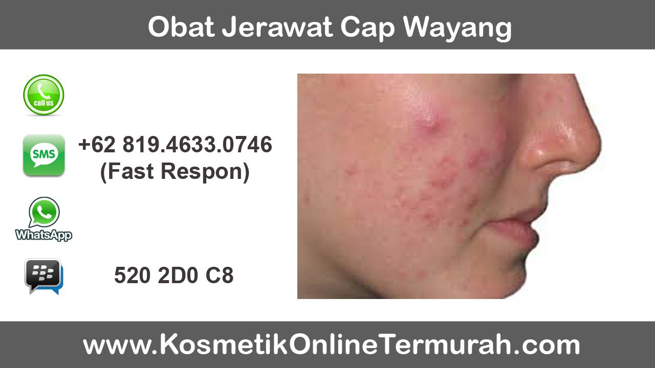 Cream Jerawat Ampuh Bpom
