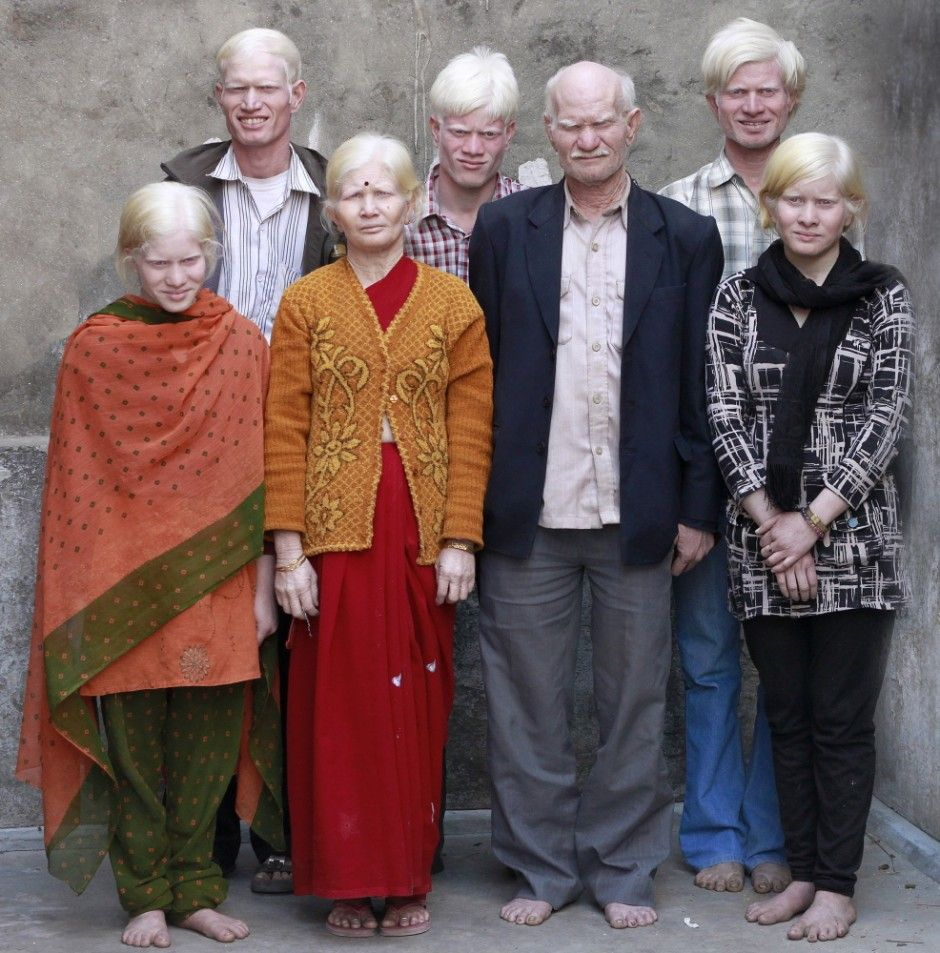 Roseturai Pullan, 50, his wife Mani, 45, and their six children, grandson and son in law were all born with the genetic skin condition called Albinism. Even though they were born and bred Indian, people called them 'angrez', which meant 'English'.