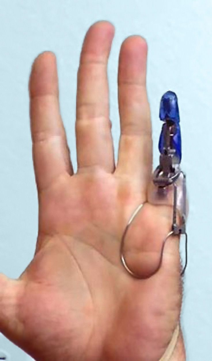 Mechanical Fingers Give Strength, Speed to Amputees   Tecnologia ...