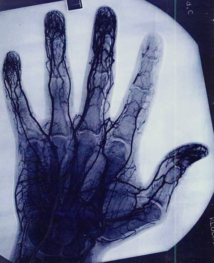 Angiogram showing damaged/decreases vascular tissue in the index ...