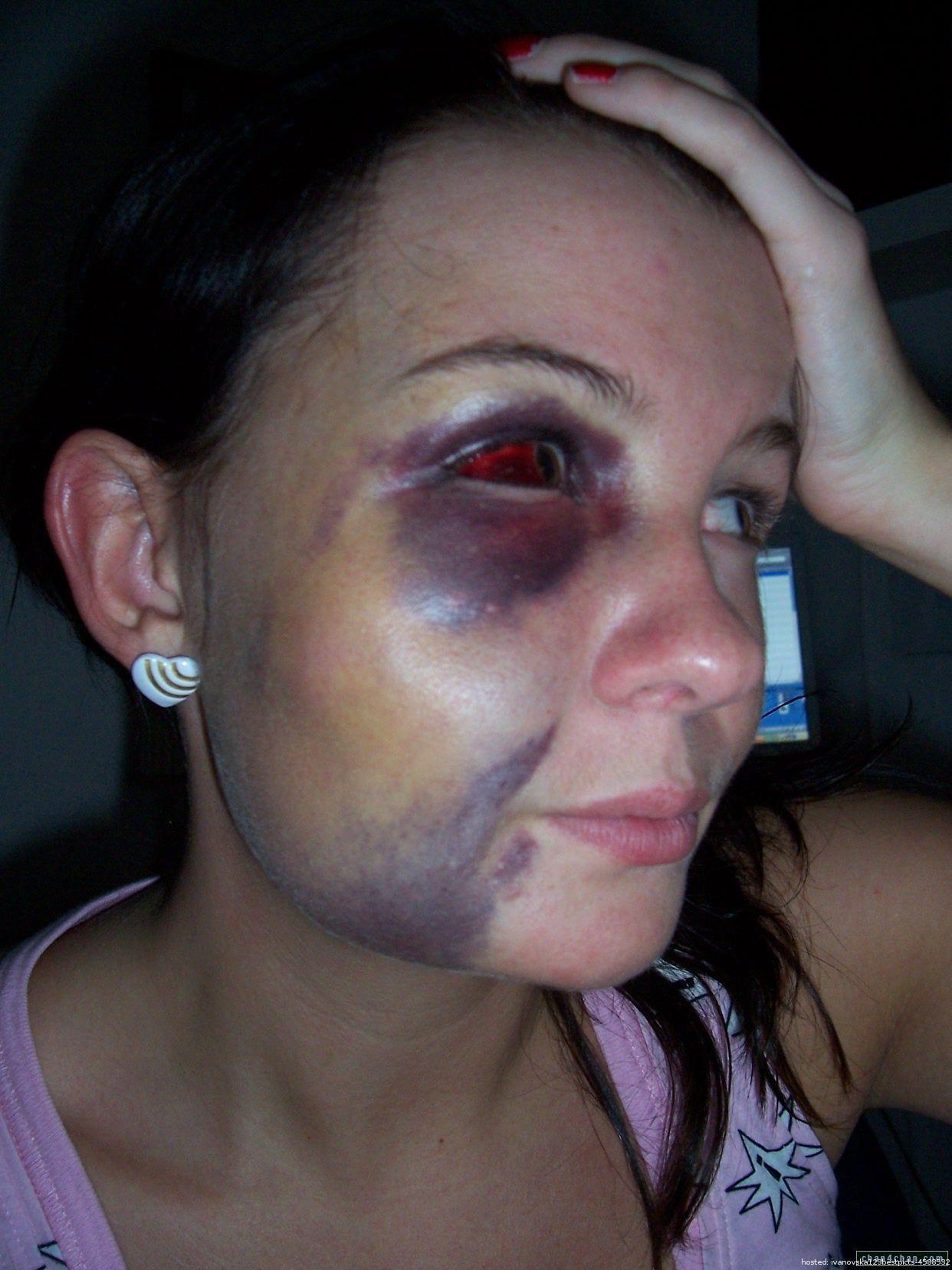 Pregnant Woman Beaten By Her Boyfriend  Pinterest -4678