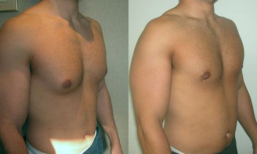 reduction Cost breast of male