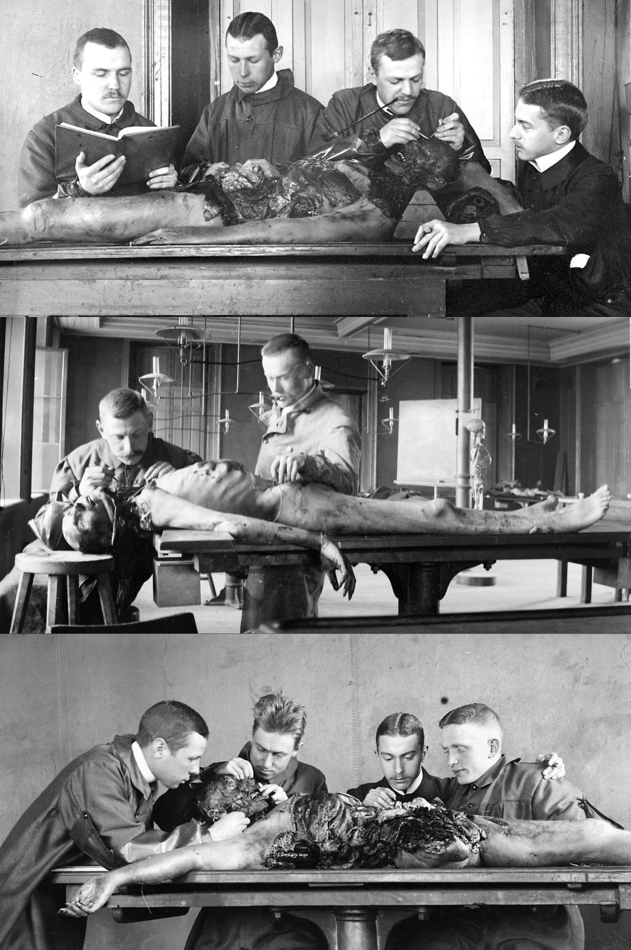 Vintage autopsy photos during 1900