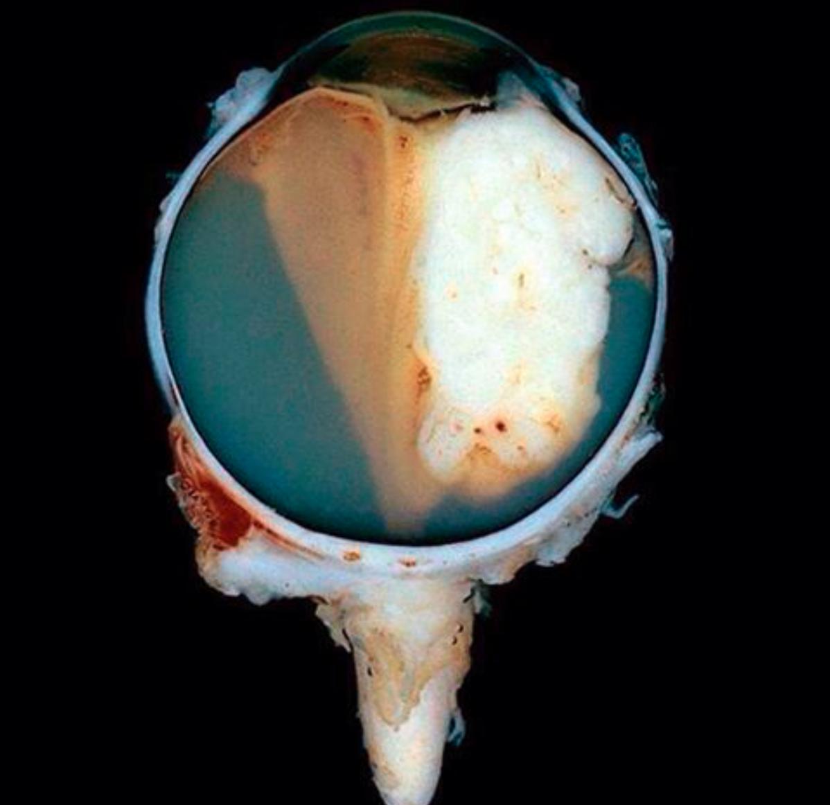 tumor - j.gardner pathology