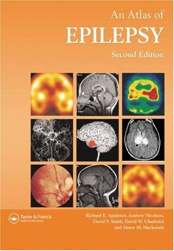 Atlas of epilepsy 2nd edition pdf download e book medical e atlas of epilepsy 2nd edition pdf download e book fandeluxe Choice Image