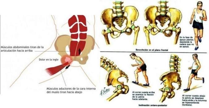 Pin On Lesiones De La Cadera