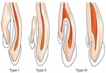 Dens in dente anatomical variations