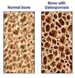 10+ Best treatment for osteoporosis in india viral