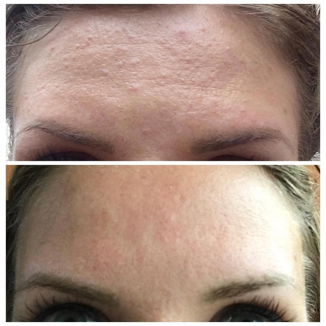 a55935caeb334f8f2ebfd925e40373fe - How To Get Rid Of Little Red Bumps On Forehead