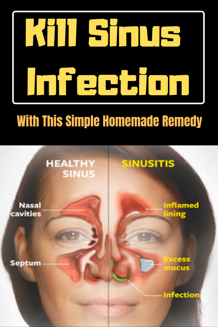 a559e3a131e507193107ab7ceb7083d8 - How To Get Over A Sinus Infection In 24 Hours