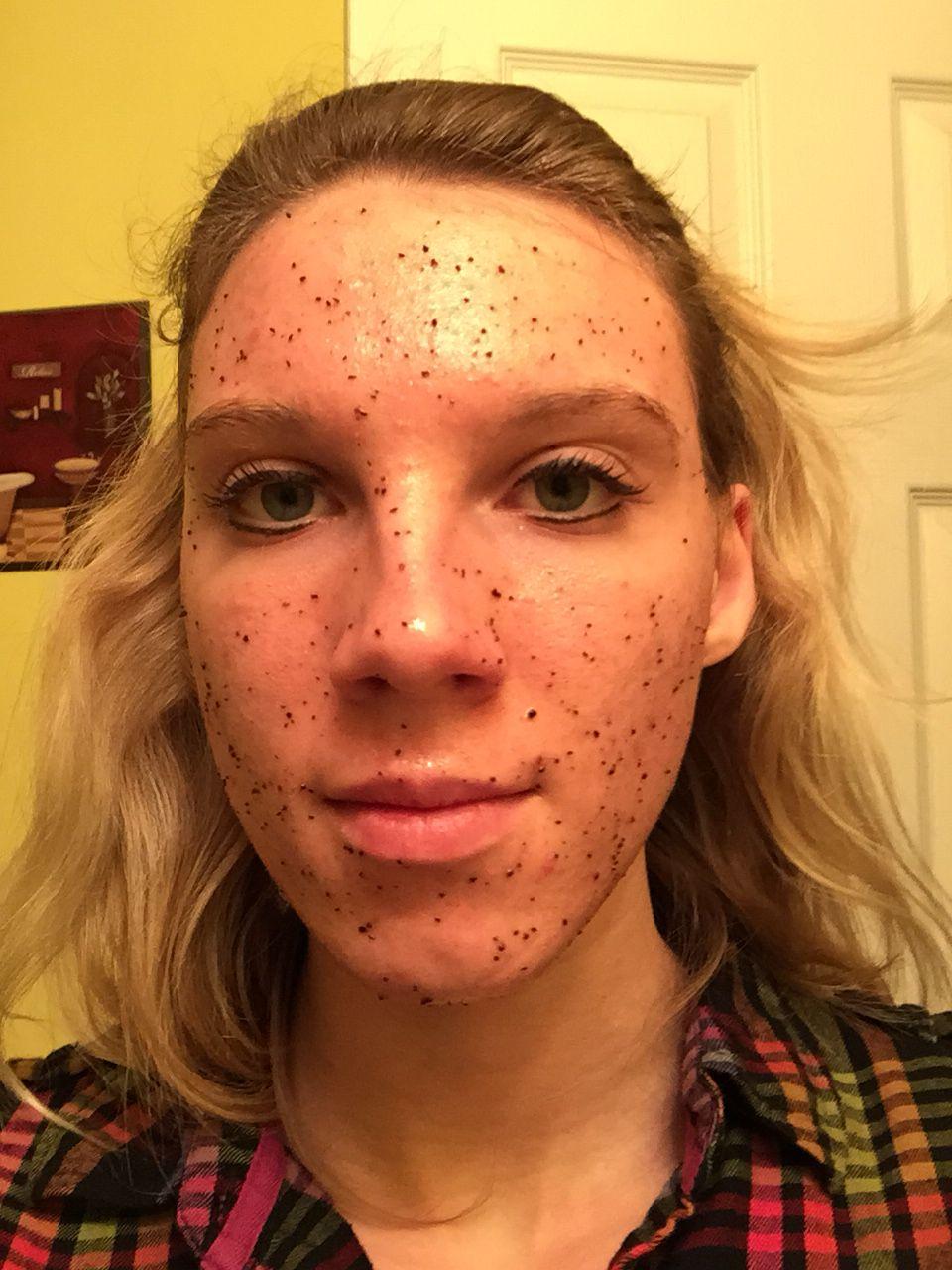 acne treatment: coffee grounds: applecider vinegar: cinnamon:nutmeg