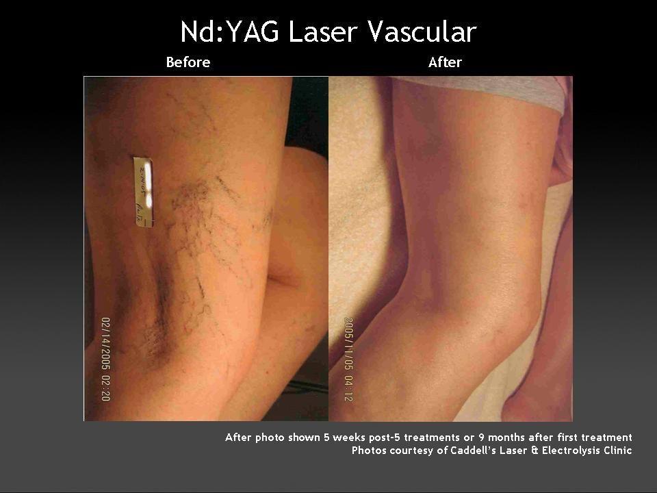 tratamentul cu laser varicos varicos în vladikavkaz)