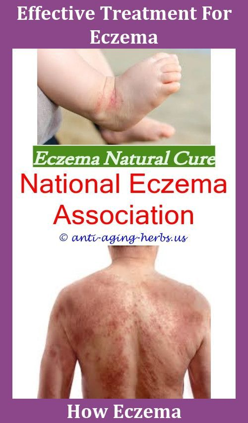 Best Cortisone Cream For Eczema,what is the difference