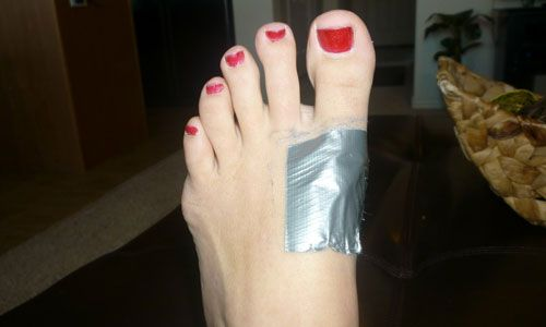 Unusual Medical Uses For Duct Tape