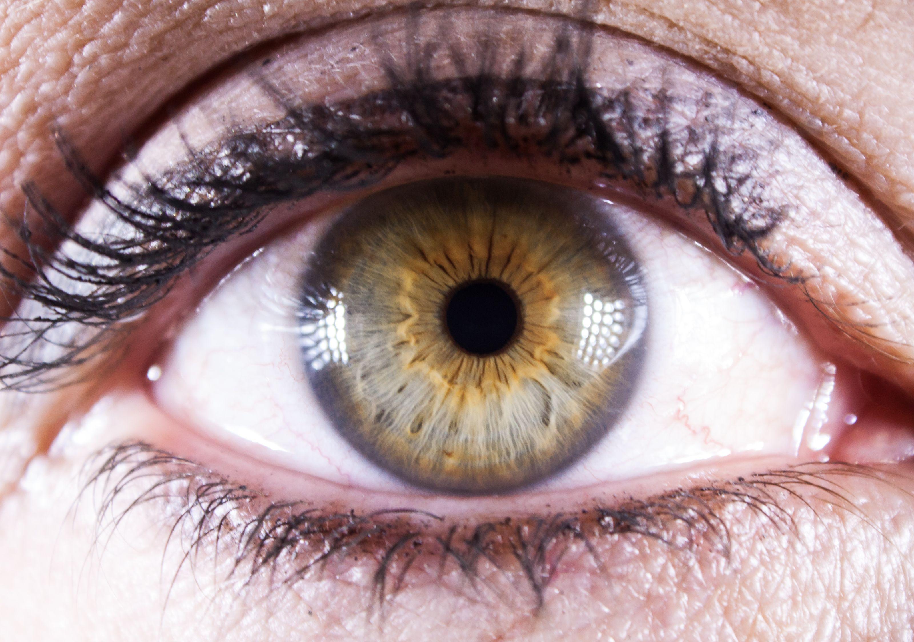 no_contacts central_heterochromia iridology green