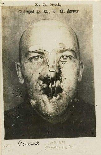 Csi facial reconstruction tasty