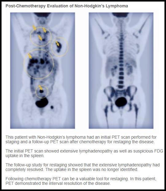 Pet Imaging In Hematology Ask Hematologist Understand Hematology Pet Imaging Pet Scan Non Hodgkins Lymphoma