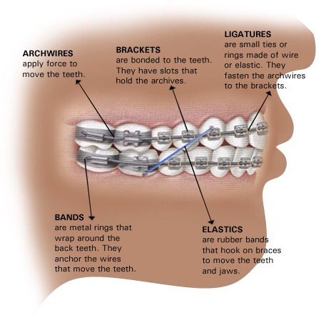 What are braces aparelho ortodontico pinterest aparelhos what are braces ccuart Choice Image