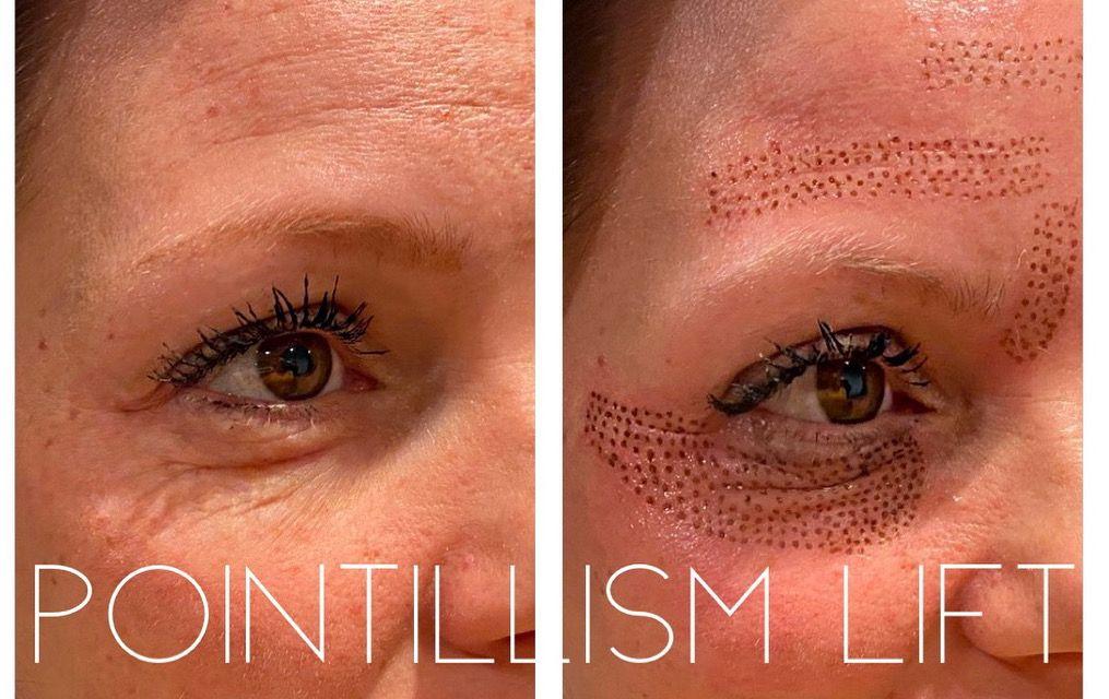 Plasma Fibroblast Under Eyes In 2020 Under Eye Wrinkles Skin Tightening Treatments Botox Under Eyes