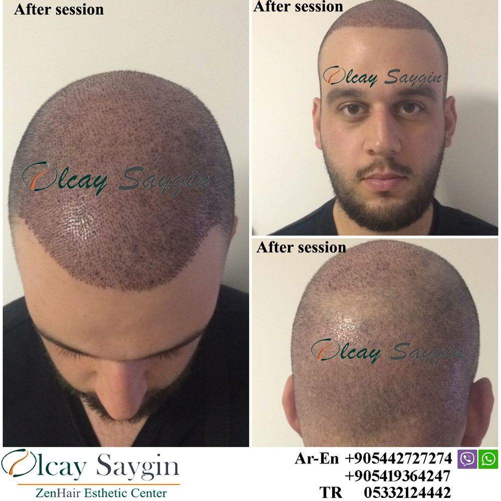 hair transplant, hair transplant turkey, olcay saygin, euro zen hair, best doctor in turkey ...