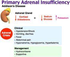 Primary Adrenal Insufficiency (Addison's Disease) Rosh